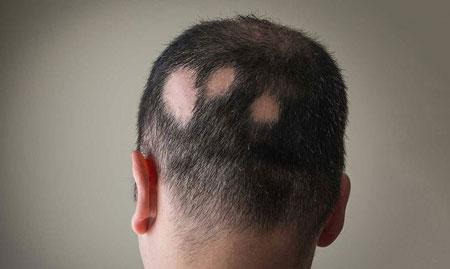 درمان ریزش سکه ای مو صورت