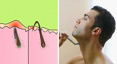 درمان موهای زیر پوستی