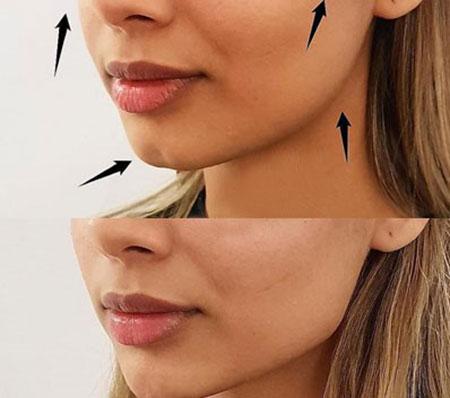 روش های زیبایی,انواع روش های زیبایی,زاویه سازی صورت