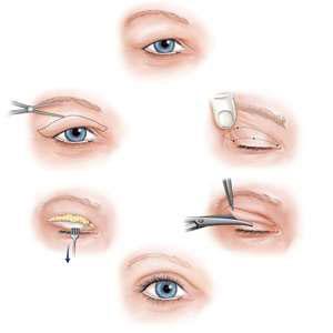 جراحی پلک,کشیدن ابرو,بلفاروپلاستی