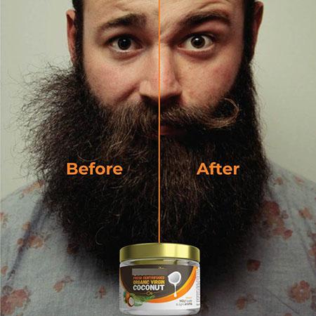 فواید روغن نارگیل برای ریش, استفاده از روغن نارگیل برای ریش, رشد سریع ریش با زدن روغن نارگیل