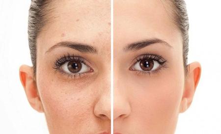 علت لک صورت,علت لکه های قهوه ای روی صورت,کمبود کدام ویتامین باعث لک صورت میشود