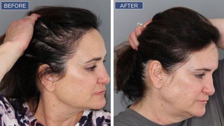 درمان ریزش مو, درمان قطعی ریزش مو, داروی ریزش مو