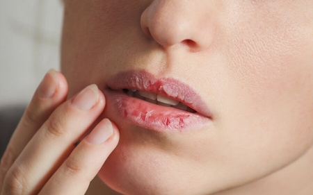 خشکی پوست ,رفع خشکی پوست,درمان سریع خشکی پوست