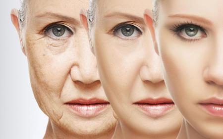 لیفت صورت , لیفت صورت بدون جراحی , جدیدترین روش لیفت صورت