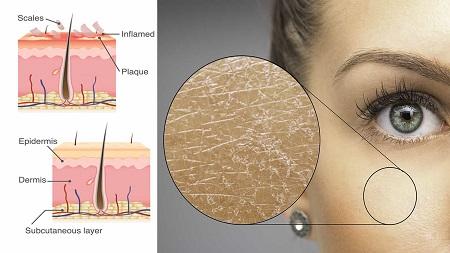 پوسته شدن صورت چرب, راههای جلوگیری از خشکی و پوسته شدن صورت, رفع پوسته پوسته شدن صورت