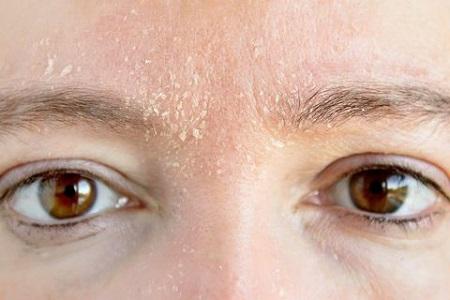 پوسته شدن صورت, پوسته پوسته شدن صورت, درمان پوسته شدن صورت