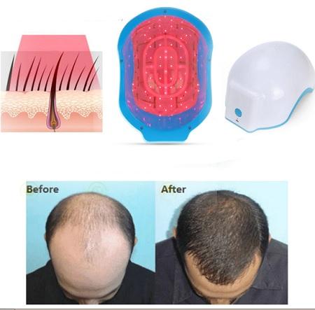 لیزرتراپی مو, درمان ریزش مو با لیزر, دستگاه لیزر تراپی مو