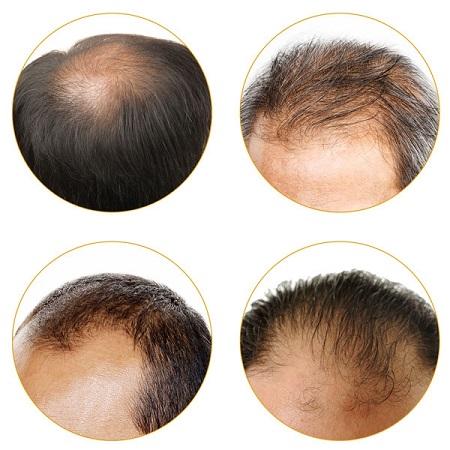 درمان ریزش مو در مردان, راههای درمان ریزش مو, ریزش مو بعد از کاشت
