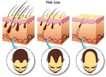 انواع ریزش مو, ریزش مو, علت ریزش مو