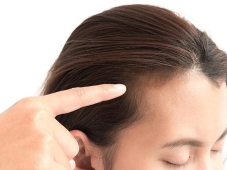 تقویت موی سر, تقویت مو, راه های تقویت موی سر