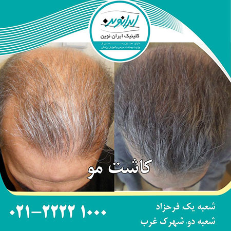کاشت مو،کلینیک تخصصی کاشت مو،انواع روش های کاشت مو