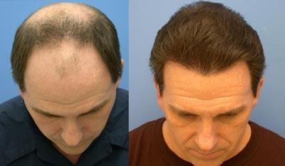 hair transplantation1 e5 چگونگی کاشت مو
