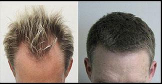 کاشت موی طبیعی,کاشت مو,پیوند مو