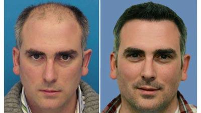 پیوند و کاشت مو,عوارض کاشت مو,کاشت موی طبیعی,مراحل کاشت مو