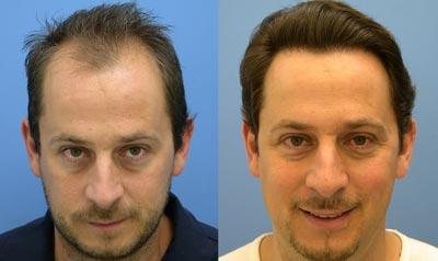 عوارض کاشت مو|کاشت موی طبیعی|مراحل کاشت مو