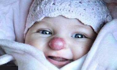 تصاویر جالب از دختری که از بدو تولد شبیه دلقکها بوده !