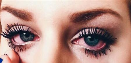 آرایش چشمهای حساس,آرایش چشم حساس,نکاتی کلیدی برای آرایش چشم حساس