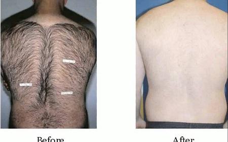 زمان لازم برای لیزر موهای زائد مردان, عوارض لیزر موهای زائد مردان, لیزر مو برای مردان
