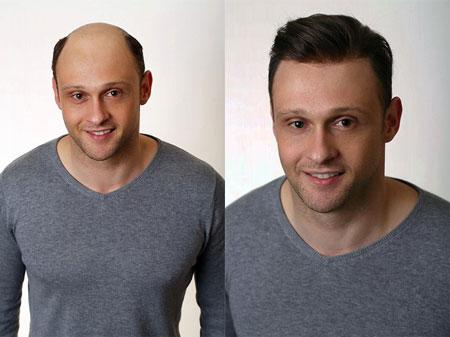 plant restoration hair24 - ترمیم مو چیست