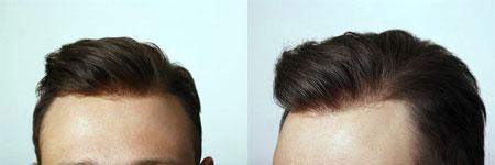 plant restoration hair25 - ترمیم مو چیست
