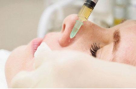 استفاده از پی آر پی,درمان با پی آر پی,ناحیه های درمان با پی آر پی در پوست و مو