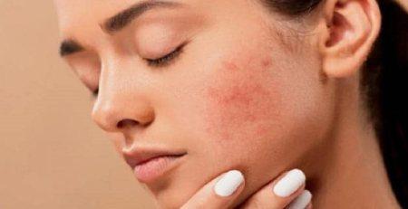 روش های کاهش چین و چروک پوست,مراقب پوست صورت