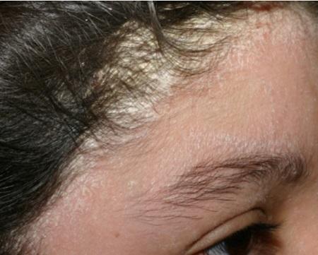 درماتیت سبورئیک, شامپو مناسب برای درماتیت سبورئیک, درمان درماتیت سبورئیک چیست