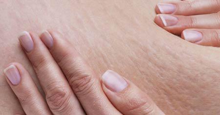 رفع ترک های پوستی,روش های موثر برای درمان ترک های پوستی,درمان های ترک های پوستی