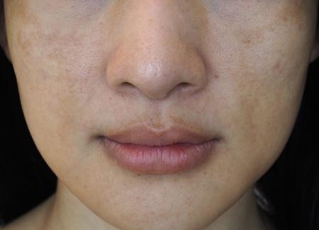 منافذ پوست , بستن منافذ پوست , منافذ پوست صورت