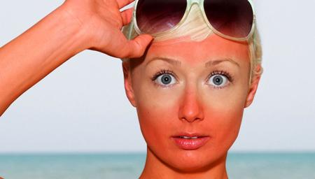 آفتاب سوختگی ,آفتاب سوختگی درمان, درمان آفتاب سوختگی