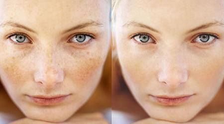 کک و مک, درمان کک و مک با لیزر