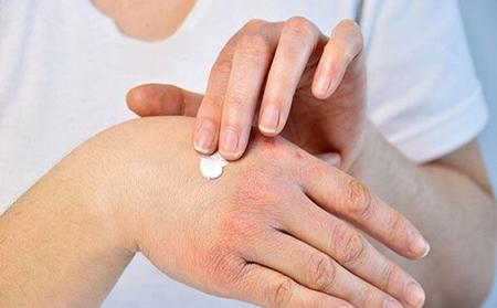 خشکی دست, علت خشکی پوست دست, خشکی پوست دست