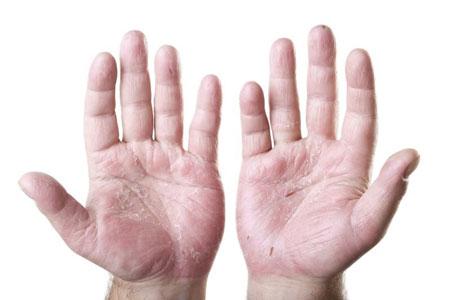 خشکی پوست دست,رفع خشکی پوست دست,چگونه می توان خشکی دست را درمان کرد