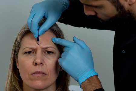 درمان خط اخم ,درمان خط اخم و چروک پیشانی,درمان سریع خط اخم و چروک پیشانی