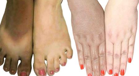 سفید کردن پوست دست و پا, روشن سازی پوست تیره دست و پا, سفید شدن دست و پا