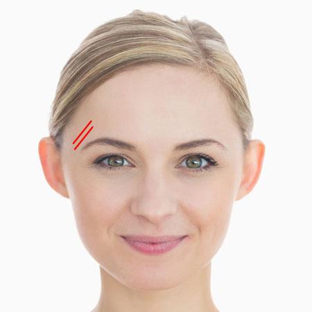 چین و چروک صورت, رفع چین و چروک صورت, درمان چین و چروک صورت