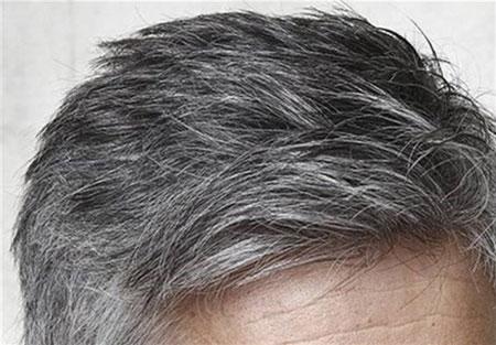 رفع سفیدی مو, سفیدی مو, جلوگیری از سفیدی مو