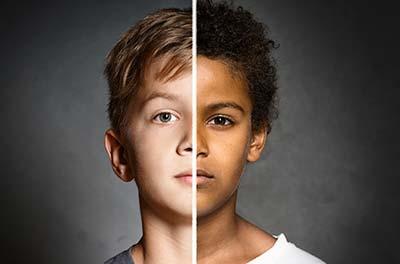 روشن شدن پوست کودک,تغییر رنگ پوست نوزاد,جنس پوست نوزاد