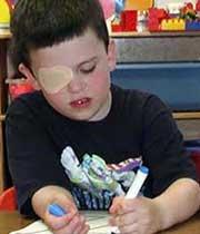 تنبلی چشم,تنبلی چشم در کودکان