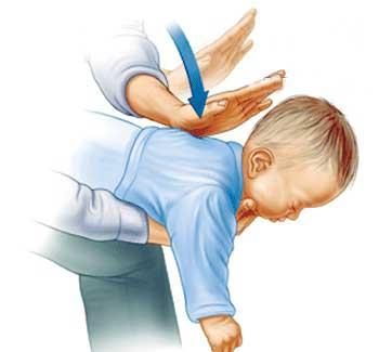 گیرکردن اجسام در گلوی بچه