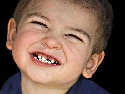 علت دندان قروچه در کودکان,دندان قروچه در کودکان