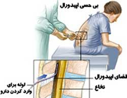 زایمان طبیعی بدون درد چیست؟