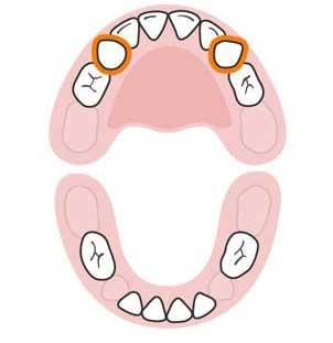 ترتیب رشد دندان های کودک,دندان های کودک,رشد دندان های کودک