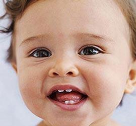 پوسیدگی دندان,پوسیدگی دندان در کودکان,قطره آهن