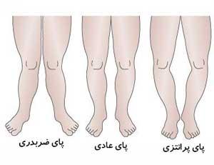 پای پرانتزی,علت پای پرانتزی,درمان پای پرانتزی,پیشگیری از پای پرانتزی