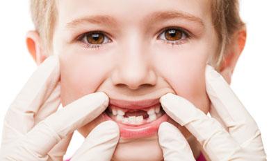 دندان های دائمی,دندان شيري كودكان