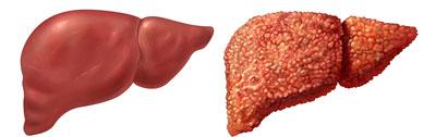 هپاتیت B در بارداری,هپاتیت C