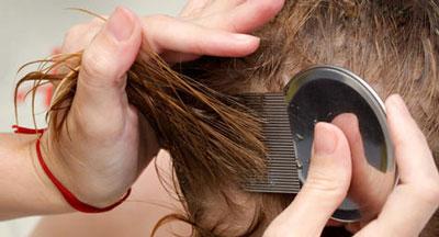 از بین بردن شپش سر,درمان شپش مو