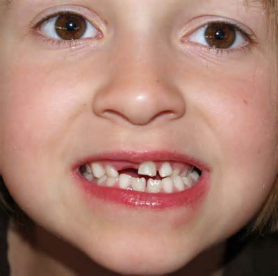 رویش دندان شیری,ریزش دندان شیری